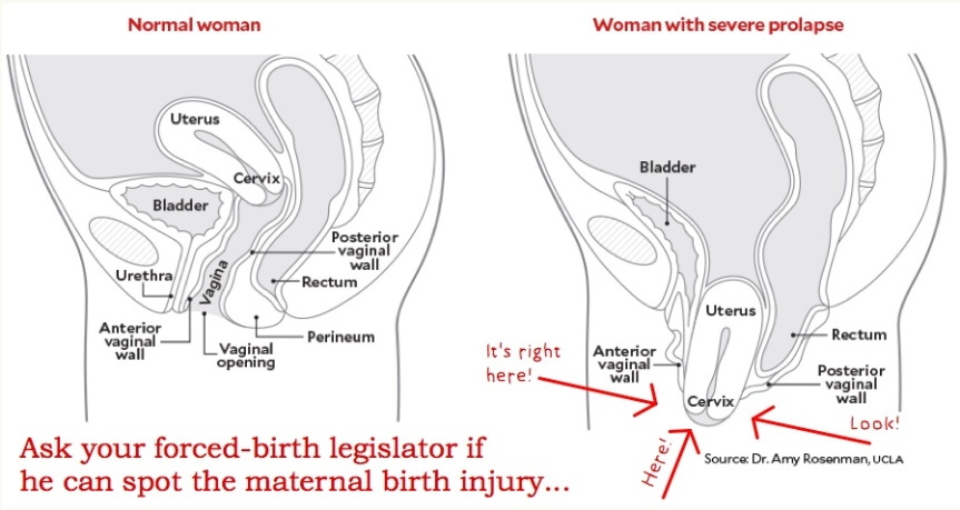 Sun 5/19: Men who barely understand women's bodies want to ban abortion. A reflection on the cruelest game… – Part 1 of2